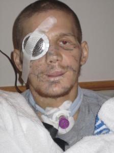 Kyle Carpenter počas zotavovania sa po zranení. pravý chlap Dôležitý odkaz pre všetky ženy v dnešnej dobe. Kto je pravý chlap? Kyle Carpenter 2